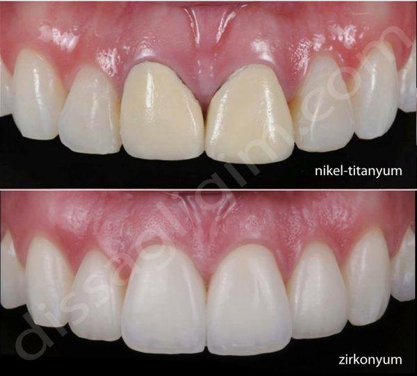 zirkonyum diş kaplama porselen
