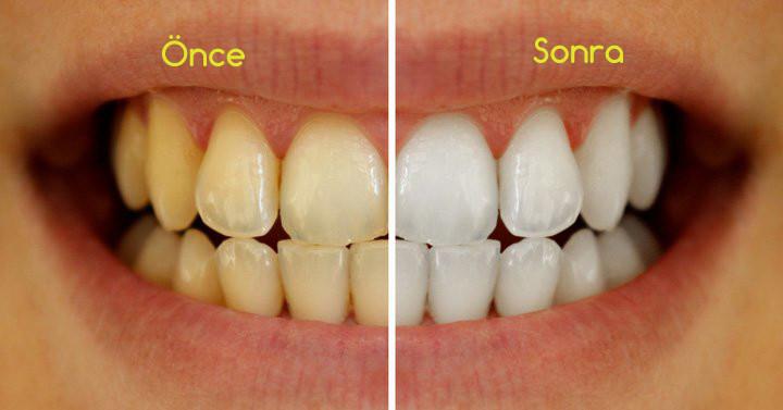 diş beyazlatma kampanya