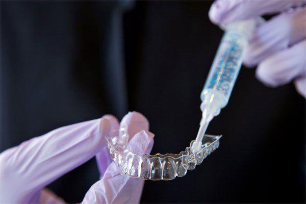 ev tipi diş beyazlatma