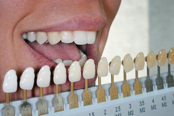 kalıcı diş beyazlatma